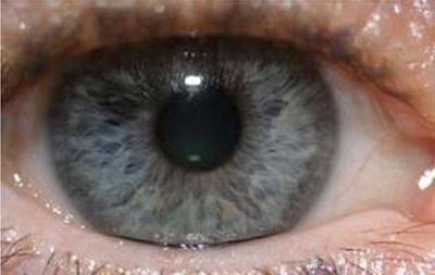 L 39 iridologie - Yeux gris bleu ...